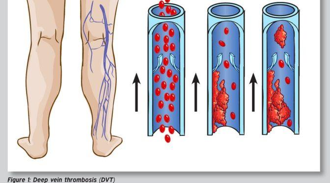 静脈血栓塞栓症の長期的治療におけるリバーロキサバンの有効性 アスピリンと比較して